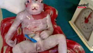 neural-tube-defect-baby